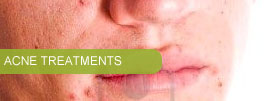 Our acne treatment services are phenomenal!